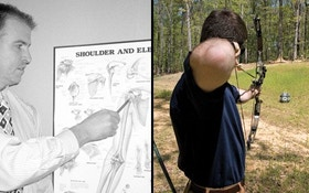 Bow Hunting and Shoulder Pain (Part 1)