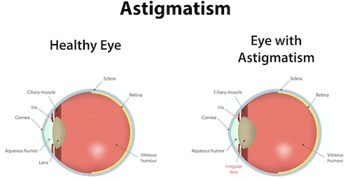 This image highlights the difference between a normal lens on the left, and an eye afflicted with an astigmatism on the right. Photo: www.aoa.org