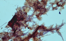 Bug of the Month: Filament Type 0092 and Wastewater Treatment
