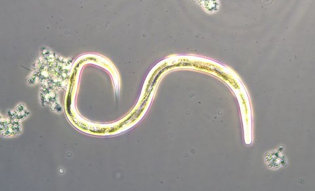 Bug of the Month: Nematodes and Wastewater Treatment Plants
