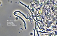 Bug of the Month: Tetrasphaera and the Role of DNA Testing