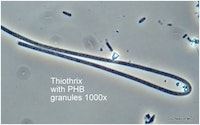 Bug of the Month: Thiothrix Is Commonly Responsible for Bulking Episodes