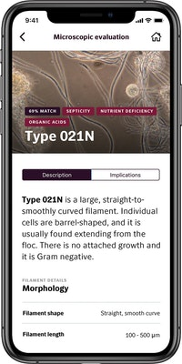 Identifying Filamentous Bacteria? There's an App for That.